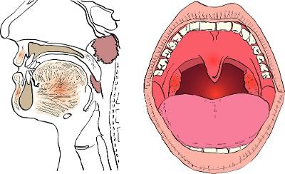 mouth diagram cheek ulcer diagram human cheek cell diagram labeled #1